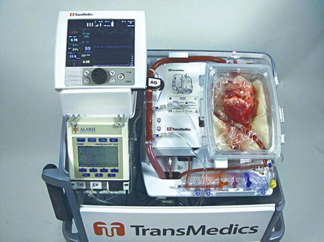 醫生利用「生物體以外器官保存系統」儀器保存心臟。