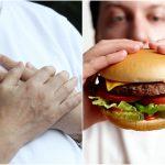 2016-10-06 Dr.東:嗜高脂快餐 壞膽固醇增患心血管病