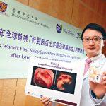 2016-11-23 亞士匹靈致腸出血 中大:患心疾勿停藥