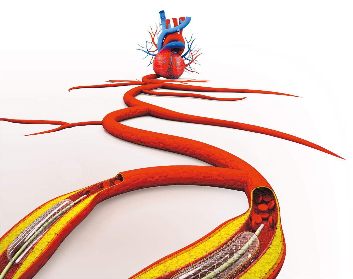 2017-06-26 快溶支架啱救年輕的心 通波仔撐血管 一年消失減風險