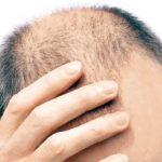 2017-12-02 男士早禿白髮 心血管病風險高