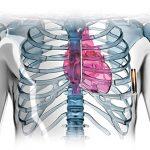 2017-11-21 醫 For Effective 心律失常治療新機 全皮下植入除顫器