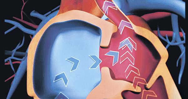 ▲心房間隔缺損是左心房及右心房之間出現一個或多個洞,以致缺氧血有機會混和帶氧血,令血含氧量下降。