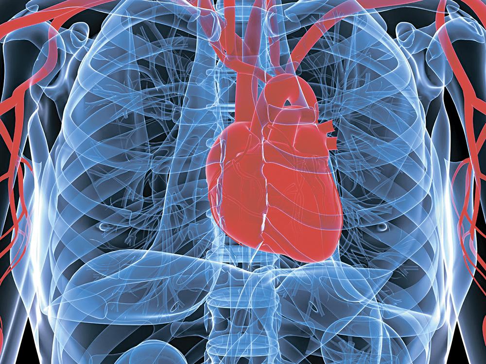 ▲嚴重的冠心病會引致心衰竭,心臟功能因而減弱。(網上圖片)