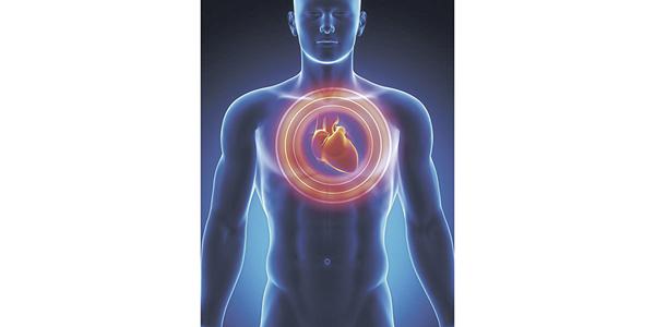 ▲心臟衰竭是心臟因各種原因引致功能減弱,導致心肌或泵血功能受損。(網上圖片)