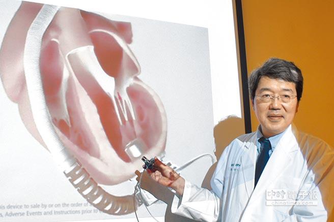 中醫大附設醫院心臟外科主任李秉純指出,新式人工心室輔助器體積小,縫合在心尖後穿入左心室,像幫浦(泵)般抽左心室的血,再以人工血管輸送到主動脈。(馮惠宜攝)