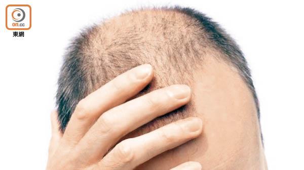 研究發現提早禿頭或提早有白髮的男士,出現心血管病的風險較健康人士高。