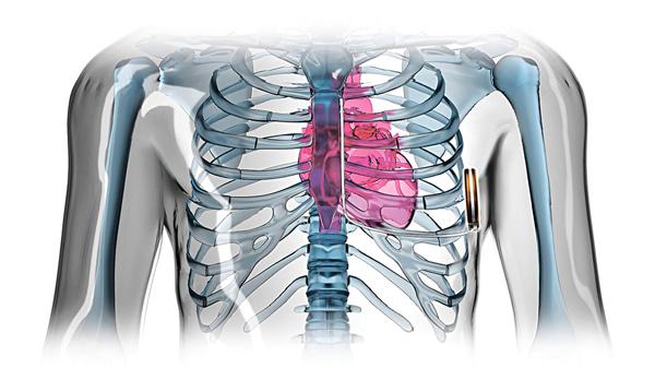 「全皮下心臟植入式除顫器(S-ICD)」,會植入在病人左方腋下的肋骨旁邊。