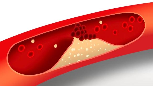 若果壞膽固醇積存在身體內,尤其是血管的表面,會增加血管栓塞的機會,久而久之亦會增加中風、心血管毛病和冠心病的機會。