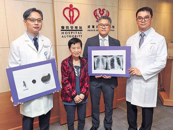 威院內科及藥物治療部顧問醫生陳日新(左)指,新型心臟起搏器為病人提供多個選擇。(黃建輝攝)