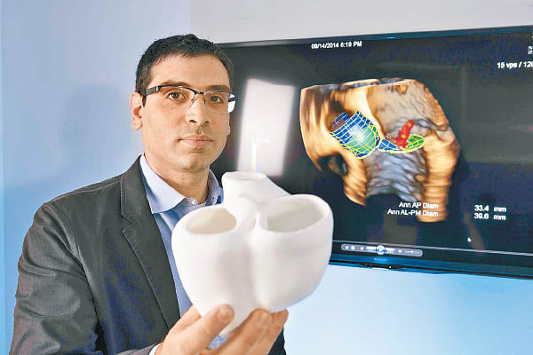 數碼模擬心臟將有助拯救更多病人。(互聯網圖片)