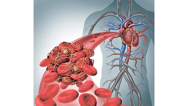 醫 For Easy 房顫患者容易中風 新藥抗凝血減風險