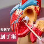 【微創手術】對付無形殺手 患主動脈瓣狹窄/高血壓有對策