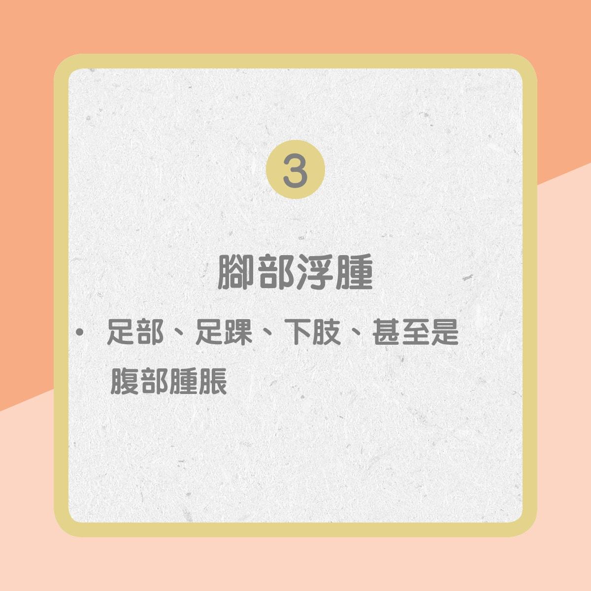 【心臟衰竭病徵】3. 腳部浮腫(01製圖)