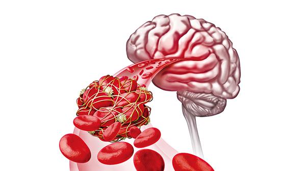 缺血性中風常見成因之一是心房顫動(網上圖片)