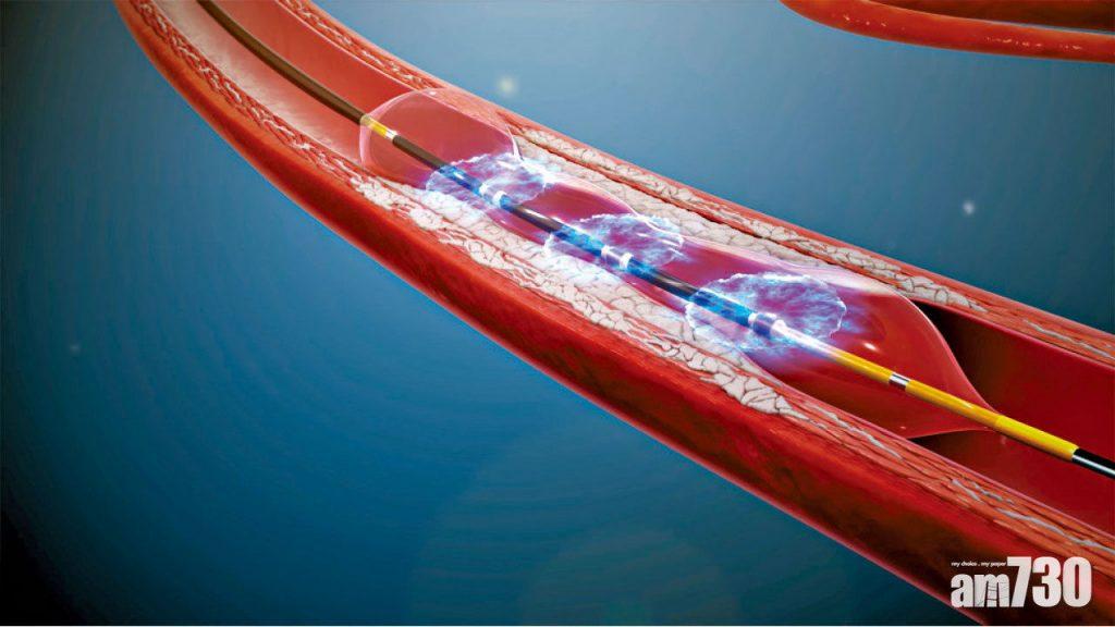 冠狀動脈衝擊波儀器可發放衝擊波,只擊碎鈣化物,而不傷及血管組織。
