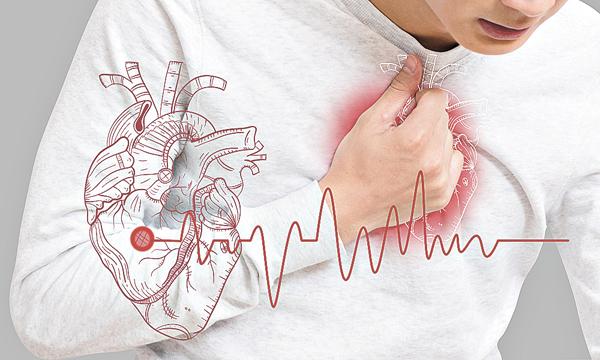 心房顫動患者是中風的高危族之一(網上圖片)