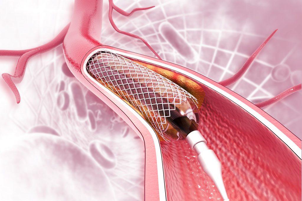▲ 「通波仔」雖可解除心肌梗塞患者的即時危險,但術後仍有機會復發。