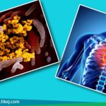 COVID-19與心臟病(上)