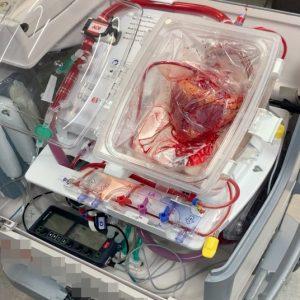 心臟移到器官護養系統後,會維持跳動。(瑪麗醫院提供圖片)
