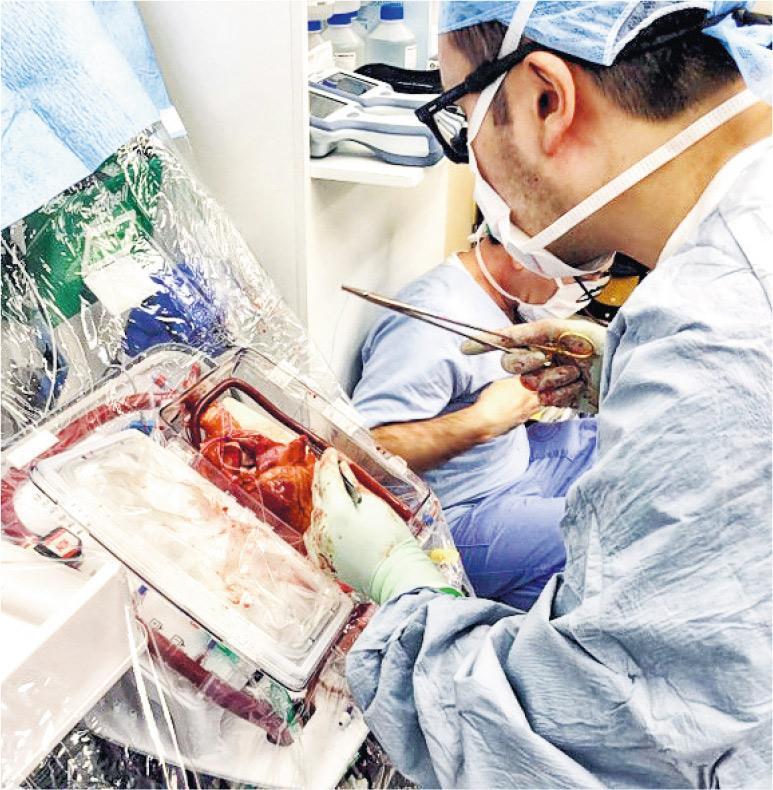 醫護團隊從捐贈者體內取出心臟後,要將心臟擺放在「器官護養系統」,並注入捐贈者血液,系統會模擬人體生理狀態,讓心臟保持跳動,直到移植至受贈者體內。(瑪麗醫院提供)