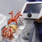 捐贈心臟接駁護養系統減損傷  香港完成亞洲首宗移植