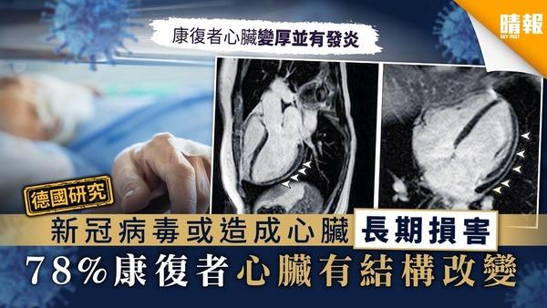 【德國研究】新冠病毒或造成心臟長期損害 78%康復者心臟有結構改變