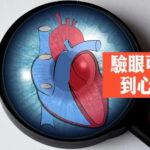 心臟病檢查|美硏究掃描眼部可檢查血管健康 有助減少心臟病發及中風風險