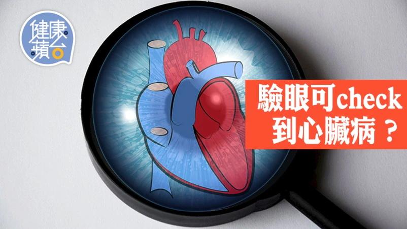 研究指透過觀察視網膜的狀況,有助了解心臟健康問題。