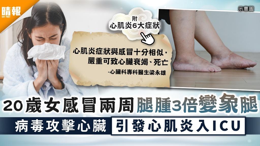 心臟病|20歲女感冒兩周腿腫3倍變象腿 病毒攻擊心臟引發心肌炎入ICU|附心肌炎6大症狀