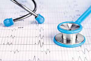 ▲一般心電圖檢查已可發現典型「布魯格達氏綜合症」病變,醫生建議有家族病史、曾無故暈倒者,先做心電圖檢查。